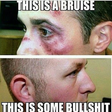 abuse vrs bs