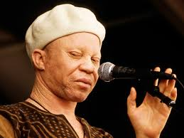 African Albinos: a threatened specie