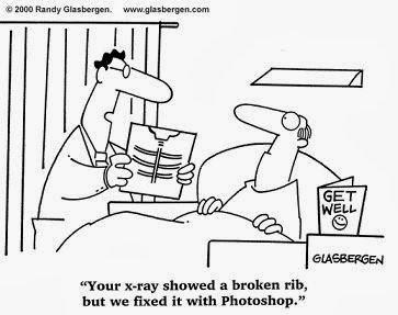 fix  broken rib xray with photoshop